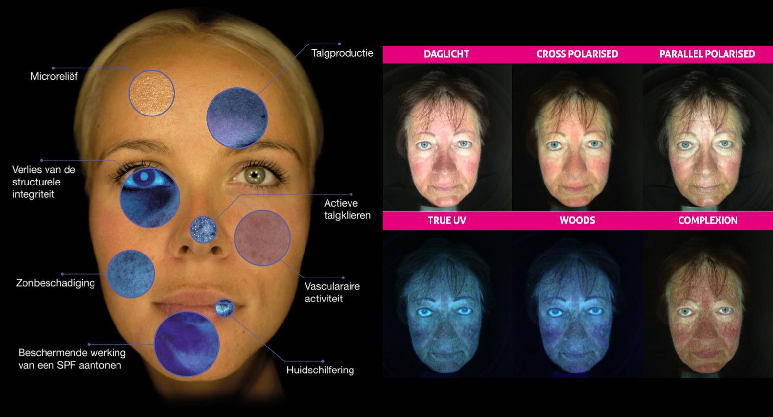 huidanalyse en huidscan met Observ