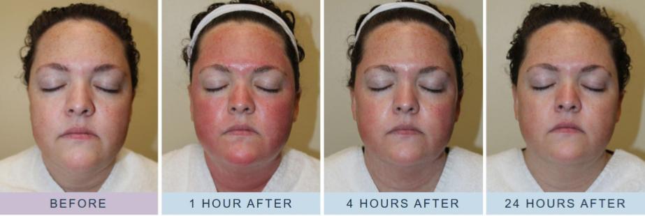 Skinbooster Skin Pen behandeling